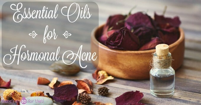 Essential Oils for Hormonal Acne