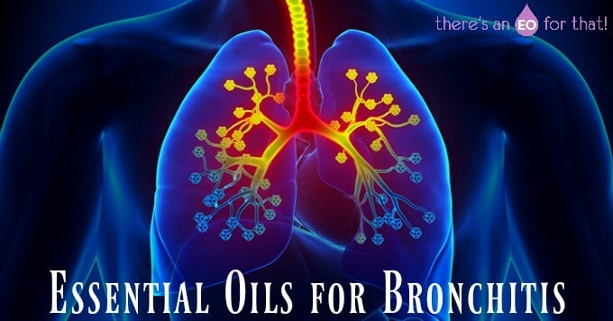 Essential oils for healing bronchitis.