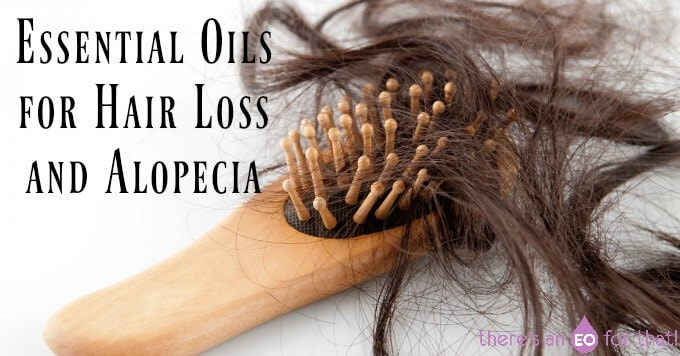 Essential Oils for Hair Loss and Alopecia
