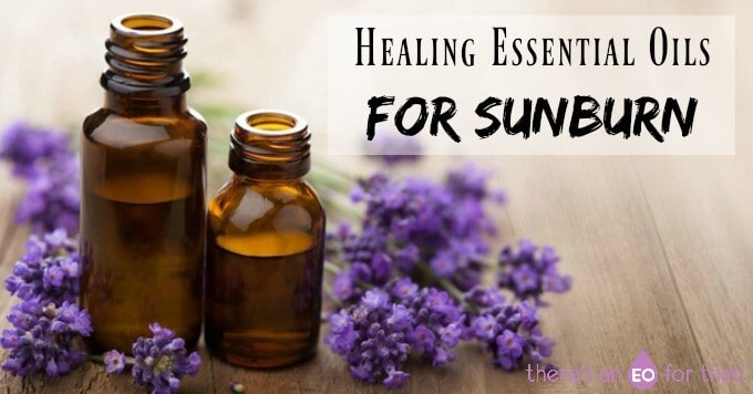 Healing Essential Oils for Sunburn