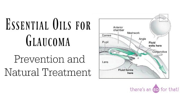 Essential Oils for Glaucoma – Prevention and Natural