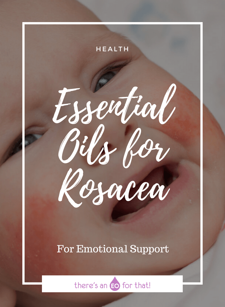 Essential Oils for Rosacea - Learn about which essential oils are best for treating the symptoms of rosacea naturally.
