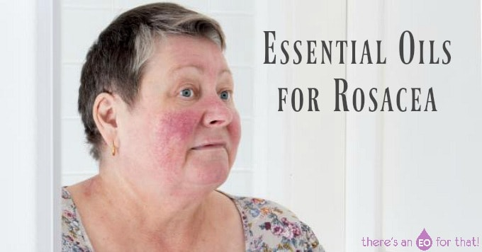 Essential Oils for Rosacea - There's an EO For That!
