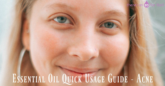 Essential Oil Quick Usage Guide - Acne
