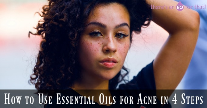 How to Use Essential Oils for Acne in 4 Steps